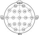 10-20 System
